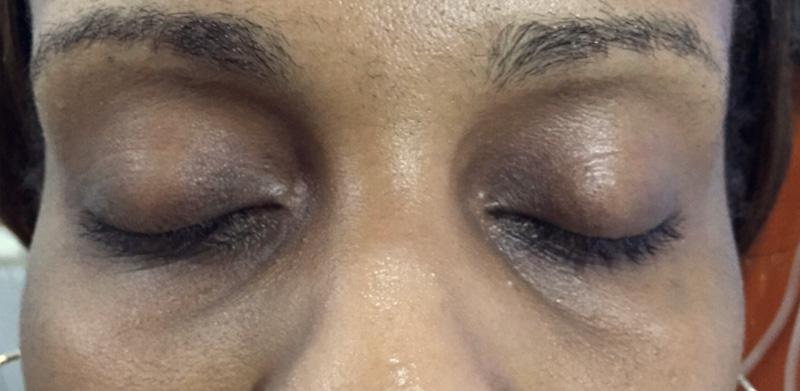 Dermal Fillers   Skin of Colour ⋆ Airesthetics Dermal